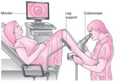Colposcopy is simply a more detailed look at the cervix. Instead of looking at the cervix with the naked eye, the person performing the colpscopy  will use a special microscope to see the changes at high magnification with good lighting.