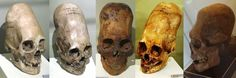 The Ancient Elongated Skulls Are NOT Human   ~II~ THE WATCHTOWERS ~II~