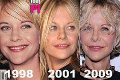 Meg Ryan Plastic Surgery Timeline Before After