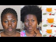 how to lighten dark skin around upper lip, get rid of hyperpigmentation, age spots, dark spots and acne scars naturally at home - This video shows how to tre. Acne Skin, Acne Scars, Acne Face, Black Spots On Face, Dark Spots, Dark Spot Remover For Face, Best Peel Off Mask, Acne Scar Removal, Remove Acne