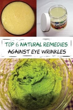 Top 6 natural remedies against eye wrinkles