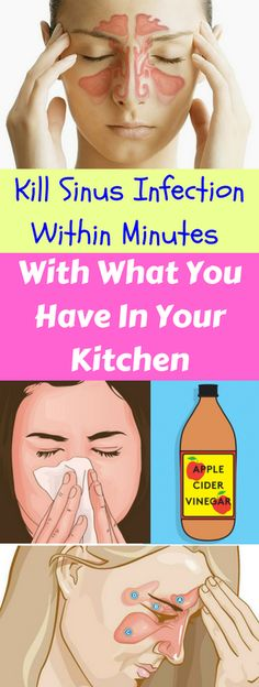 Kill Sinus Infection Within Minutes, With What You Have In Your Kitchen – healthycatcher
