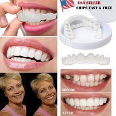 Cosmetic Dentistry Snap on Smile Comfort Fit Flex Teeth Veneers for sale online Perfect Smile Teeth, Snap On Smile, Veneers Teeth, Dental Veneers, Tooth Replacement, Smile Dental, Dental Care, Teeth Implants, Dental Implants