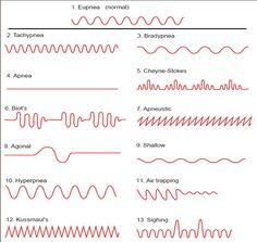 Semiologia tipos de respiración: Kussmaul, Cheyne-Stokes, Biot + VIDEO - Medicina mnemotecnias