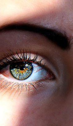 Heterochromia. Blue + orange.