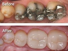 Cerec Same Day Crowns Before and After - Carson City Dentist, Advanced Dentistry by Design
