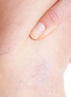 Vene de Sânge Sparte Pe Picioare sau Față – Tratamente Naturiste