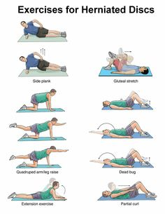Physiotherapy Exercises For Back Pain Exercise for Herniated disc/ Exeercise for disc prolapse/exercise fo . Prolapse Exercises, Back Pain Exercises, Lumbar Exercises, Slipped Disc Exercises, Exercises For Herniated Disc, Herniated Disc Lower Back, Cervical Spine Exercises, Exercise For Back Pain, Lower Back Pain Stretches