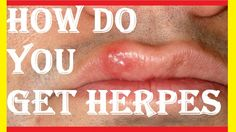 Ways To Contract Herpes Arthritis, Knowing You, Health Care, Check, Health