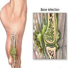 Proper Treatment For Osteomyelitis
