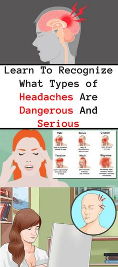 Natural Headache Remedies Learn To Recognize, What Types Of Headaches Are Dangerous, Severe Headache, Tension Headache, Headache Relief, Types Of Headache, Headache Medicine, Health Routine, Health Guru, Natural Headache Remedies, Good Health Tips
