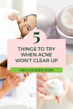 Acne can be overwhelming. We are sharing 5 easy tips to achieve clear skin on the blog. Learn how to get rid of acne and get clear skin without the need for more harsh skin products that dry out your skin and cause even more acne. natural acne treatment | acne treatment products | how to clear acne Acv For Acne, Acv For Skin, Vinegar For Acne, Apple Cider Vinegar For Skin, All Natural Hair Dye, All Natural Skin Care, Natural Beauty, Toner For Face, Skin Toner