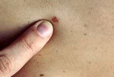 Skin cancer is a common disease, unfortunately. Even though it's largely preventable, about 1 in 5 adults will develop it in his or her lifetime. There are three different types of skin cancer: Basal Cell Carcinoma, Melanoma, and Squamous cell carcinoma.