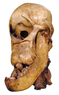Skull of a horse with cyclopia, c.1841