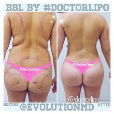 Want to get the same sexy buttocks and small waist ? Made possible by - plastic surgeon Body Lift Surgery, Tummy Tuck Surgery, Bbl Surgery, Surgery Recovery, Mommy Makeover, Tummy Tucks, Weight Loss Surgery, Liposuction, Transformation Body