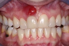 Mainly caused by gingivitis and a chipped tooth, an abscessed tooth is an infection between the gums or in tooth's root, which is very painful. Natural Teeth Whitening, Whitening Kit, Abscess Tooth, Gum Disease Treatment, Acne Treatment, Remedies For Tooth Ache, Swollen Gum, Tooth Pain, Herbal Cure