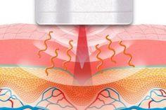 Tratamentos estéticos para celulite