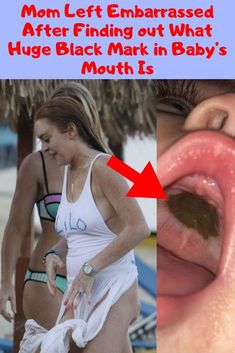 Mom Left Embarrassed After Finding out What Huge Black Mark in Baby's Mouth Is Weird Facts, Fun Facts, Wtf Funny, Hilarious, Teen Actresses, Good Fats, Awkward Moments, Funny Pins, Jokes