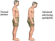 . Ankylosing Spondylitis is a disease which is primarily characterized by chronic inflammation of the joints between the spine and ankles it affect the whole body.