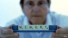 """Memory is 'team effort' by several regions of the brain.  Dr Simon Ridley, head of research at Alzheimer's Research UK, said it was too early to say how the findings could help research into Alzheimer's disease and other forms of dementia.    """"It is important that we understand the complexities of the brain and this discovery brings another insight."""