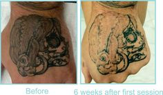 Before and After tattoo Removal at Eraze Laser Clinic. 6 Weeks After First Session. http://Eraze.com.au