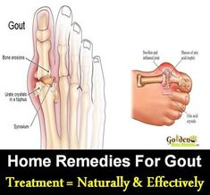 Remedies Arthritis Home Remedies For Gout: 10 Natural Solutions: Gout Causes, Symptoms, Gout Pain Treatment, How To Get Rid Of Gout Pain? Home Remedies For Arthritis, Home Remedy For Headache, Yoga For Arthritis, Rheumatoid Arthritis Treatment, Natural Headache Remedies, Arthritis Remedies, Arthritis Symptoms, Knee Arthritis