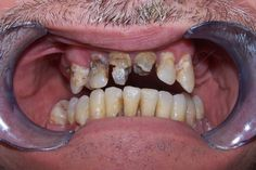 Cosmetic Dentistry, Wheaton, Napervile Patient, Dental Sedation