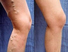 Vein Treatment Clinic provides varicose vein treatment by expert doctors.We also treat thread veins, leg pain, bulging veins and other venous conditions. Our clinics are located in New York, San Diego, New Jersey and Texas. Varicose Veins Causes, Varicose Veins Treatment, Health Advice, Health And Wellness, Health Fitness, Fitness Workouts, Cellulite, Under The Knife, Circulation Sanguine