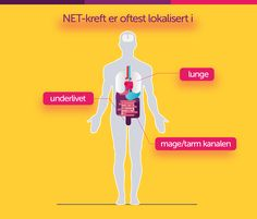 NET-kreft kan oppstå mange steder i kroppen, oftest i mage/tarm kanalen, i lungene eller i underlivet