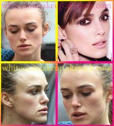 Celeb Surgery Kristen Stewart Nose Job Before And After