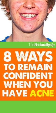 8 Ways to Remain Confident When You Have Acne | These tips are awesome!