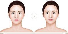 Chin Reduction Surgery, Normal Blood, Drugs, Facial, Aspirin, Cosmetics, Facial Treatment, Facial Care, Face Care