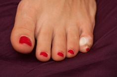 How corns are formed and what separates them from calluses #podiatry #footcare
