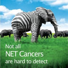 Detecting NET Cancer. Most NET cancers are diagnosed at a later stage, when they have already spread to other parts of the body. We need to raise awareness about NET Cancer, neuroendocrine tumors, carcinoid, and the need for timely diagnosis and access to optimal treatment and care. http://netcancerday.org/learn-more/diagnosis-and-misdiagnosis-2