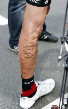 Georgie Hincapie's legs after 15 editions of the Tour de France (American professional road bicycle racer)