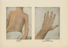 1906 l Eczema.