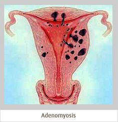 Adenomyosis is a condition causing severe menstrual bleeding and pain. It can be treated with hormone therapy, anti-inflammatory drugs, or a hysterectomy. Endometriosis Awareness, Fibromyalgia, Interstitial Cystitis, Abdominal Pain, Chronic Fatigue Syndrome, Pcos, Chronic Pain, Nursing, Health