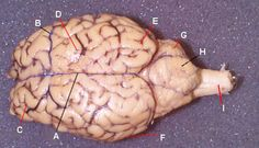 Sheep Brain Dissection Guide with Pictures | Secondary ...
