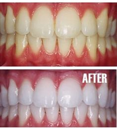 Put a tiny bit of toothpaste into a small cup, mix in one teaspoon baking soda plus one teaspoon of hydrogen peroxide, and half a teaspoon water. Thoroughly mix then brush your teeth for two minutes. Remember to do it once a week until you have reached the results you want. Once your teeth are good and white, limit yourself to using the whitening treatment once every month or two. - Click image to find more DIY  Crafts Pinterest pins