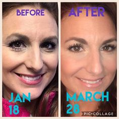 Skeptical if our products work? Reverse fine lines & wrinkles, sun damage and age spots with a simple SeneGence regimen.    *NO FILTERS USED.    Before Senegence & After.    Morning: Anti-Wrinkle Treatment, Climate Control, SeneSerum-C, Daytime Moisturizer, Silk, MakeSense Foundation    Night: Anti-Wrinkle Treatment, Climate, Control SeneSerum-C, Evening Moisturizer, Eye Creme    Contact me so I can help get you started on your journey.  #AntiWrinkle