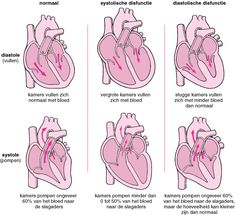 Hartfalen: pomp- en vulproblemen