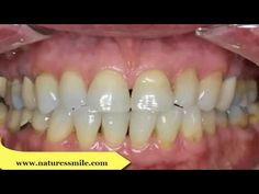 What Is Important To Know More About Receding Gums Treatment Options At Home - More Oats Please