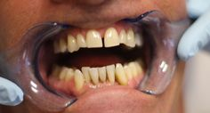 http://golpa-dentalimplantcenter.com Dr. Golpa has been placing Dental Implants, with an industry leading success rate, for more than 16 years. Dr. Golpa spent the first half of his career becoming the Premier Cosmetic Dentist in Las Vegas, developing a skilled eye and an artistic hand, Dr. Golpa has been able to create and perfect the most cutting-edge techniques.