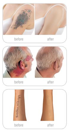 Cover up tattoos, scars & birthmarks Tattoos To Cover Scars, Cover Tattoo, Camouflage Makeup, Body Makeup, Contour Makeup, Skin Makeup, Full Makeup, Tatoo, Acupuncture