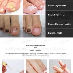 nail tips ideas Makeup Tricks - Guadalupe Pratt Fungal Nail Treatment, Skin Treatments, Makeup Tricks, Pedicure At Home, Pedicure Ideas, Nail Ideas, Beauty Hacks Nails, Vestidos, Home Remedies