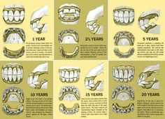 Age Chart Horse Permanent Teeth | This fun chart shows you how to age a horse by looking at the teeth!