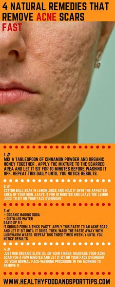 4 Natural Remedies That Remove Acne Scars FAST!