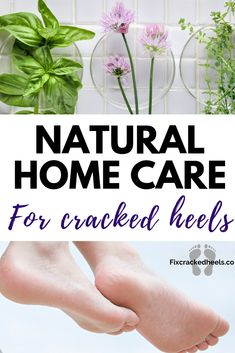 We have some great natural home care suggestions for your cracked heels ! What Causes Cracked Heels, Dry Cracked Heels, Pedicure Tips, Pedicure Supplies, Dry Skin Remedies, Home Remedies, Natural Health Tips, Natural Healing, Paraffin Wax Treatment