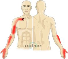 Wrist, Hand, and Finger Pain | Imbue Pain Relief Patch