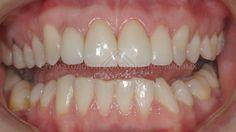 Виниры до и после. Стоматология Копыловых. врач Дмитрий Копылов. Виниры на зубы.